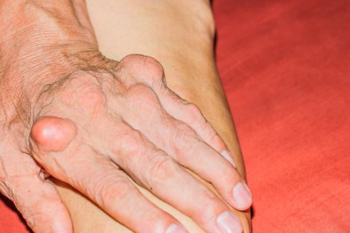 Rheumatoid-Arthritis-in-Senior-Adults-Treat-the-Symptoms-Fast