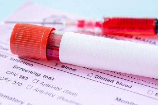 Laboratory Screening Recommendations for Adults Above 50