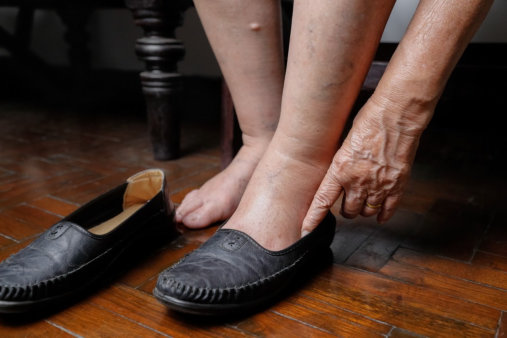 Long-Term Diabetes Complications with the Foot